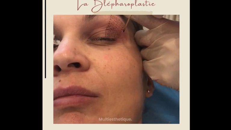 Blépharoplastie - Dr Catherine de Goursac