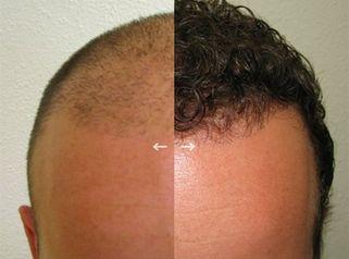 La greffe de cheveux par cellules souches