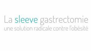 La sleeve gastrectomie une solution radicale contre l'obésité