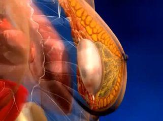 Différents types d'implants mammaires