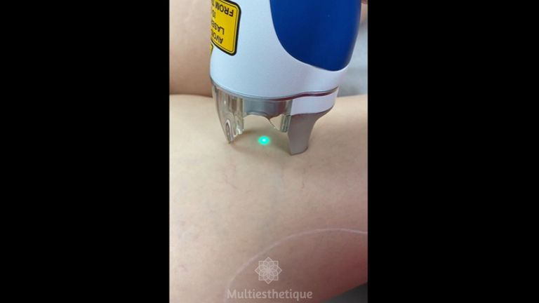 Laser vasculaire - Dr Mahboubeh Charlot