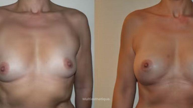 Une augmentation mammaire adaptée à la morphologie