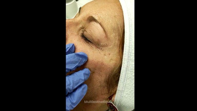 Blépharoplastie - Dr Marie Levisse