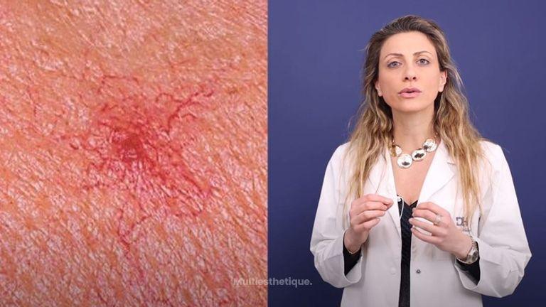 Angiomes Traitements au Laser