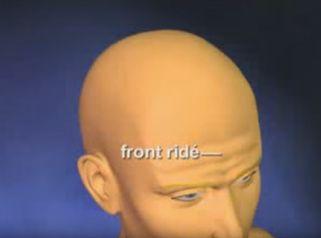 Le lifting frontal, pour rajeunir le front ridé