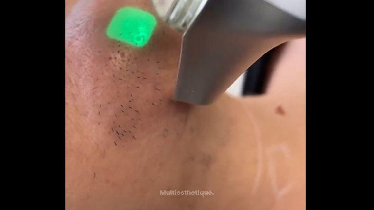 Épilation Laser - Dr Mahboubeh Charlot