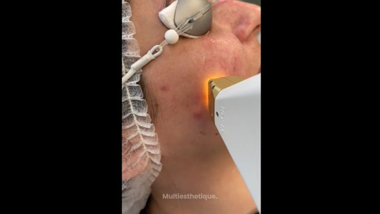 Couperose - Dr Mahboubeh Charlot