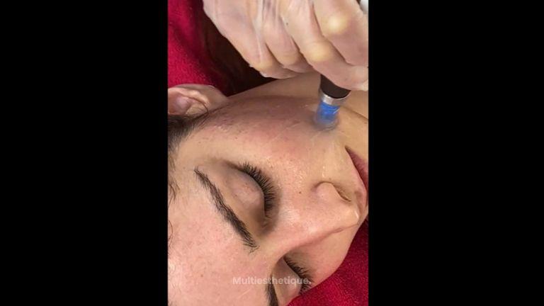 Skinbooster - Dr Mahboubeh Charlot