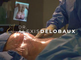 Liposuccion - Dr Alexis Delobaux