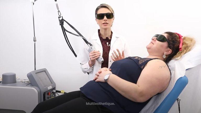 Kératose pilaire Traitement au Laser