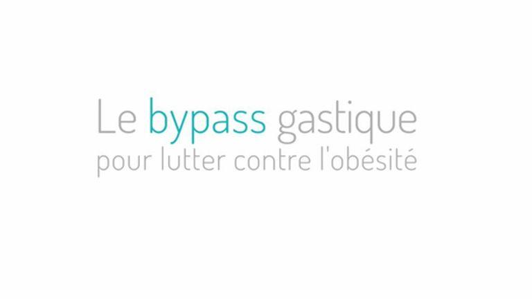 Le bypass gastrique pour lutter contre l'obésité.