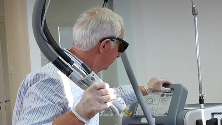 Le laser a révolutionné l'épilation définitive